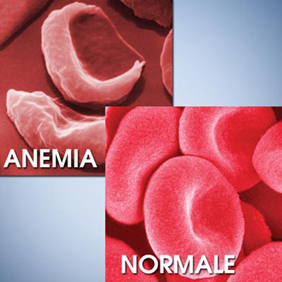Ferro Biomed benefici contro anemia