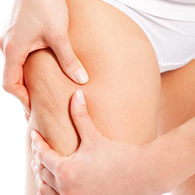 Potassio Biomed benefici cellulite e ritenzione idrica